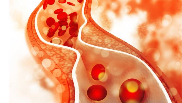 مراقبت از قلب - کاهش کلسترول خون