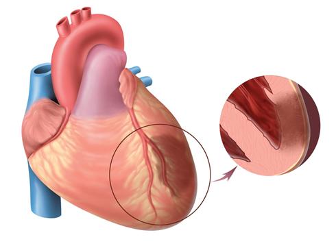 نشانه های سکته قلبی