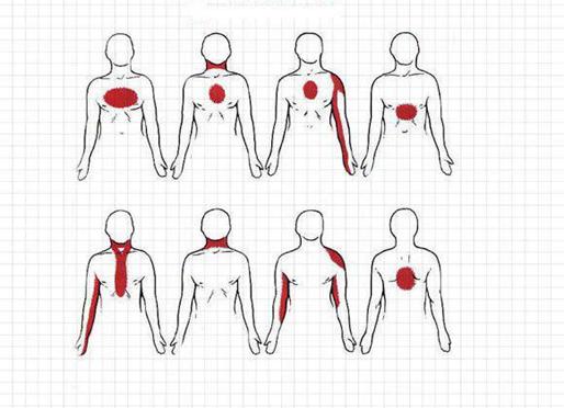 علائم هشدار دهنده سکته قلبی