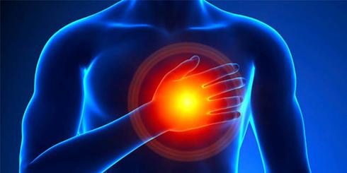 آنژین و سکته قلبی