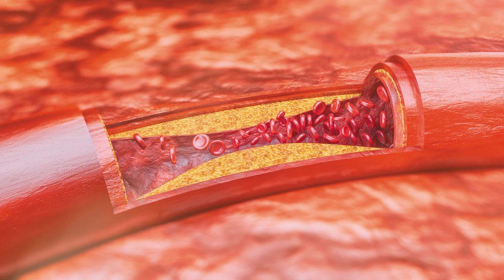 خطرات ناشی از گرفتگی رگ قلب
