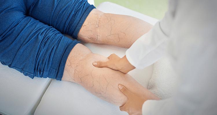 براي درمان واريس به چه متخصصي مراجعه كنيم؟