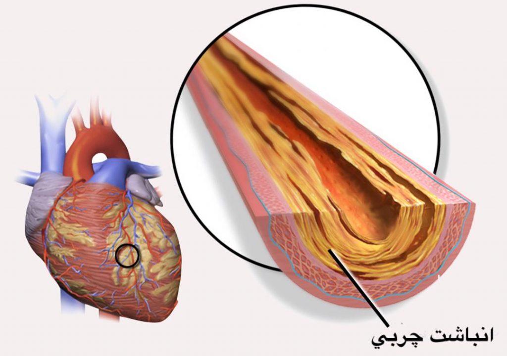 بیماری عروق کرونر قلب
