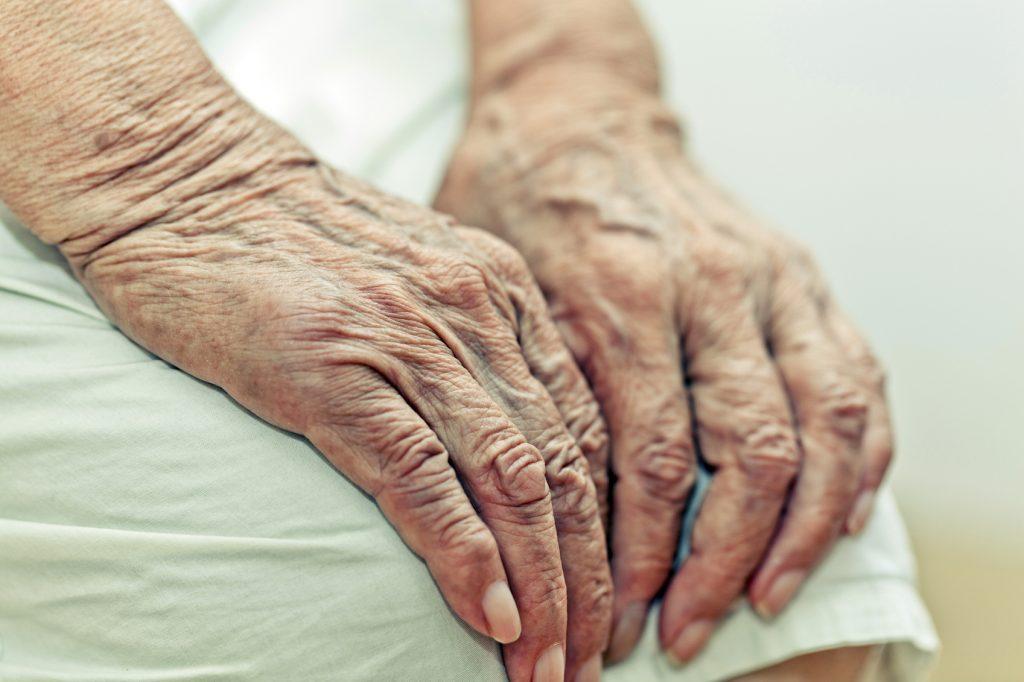 فشارخون بالا - افزایش سن