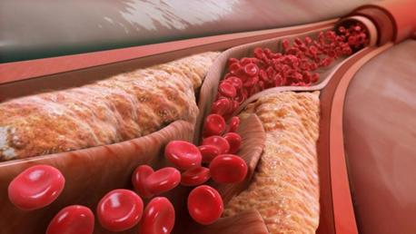 چهارمین علت سکته قلبی : سطح کلسترول بالا