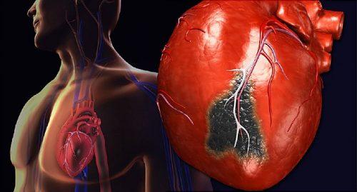 نارسایی وریدی و آسیب دیدگی دریچه های قلب