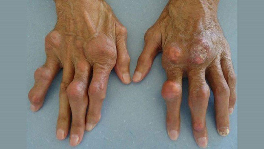 علت درد دست چپ