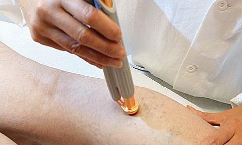 واریس پا چگونه درمان میشود ؟
